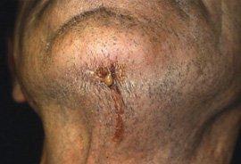 Dental Abscess - Untreated abscess burst through skin (sinus)