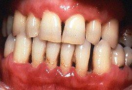 Acute Ulcerative Gingivitis in HIV patient