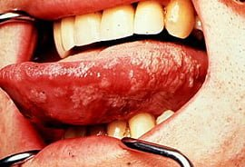 Hairy Leukoplakia on tongue in HIV patient