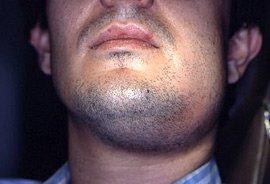 Ludwig's Angina, Swelling under the mandible (submandibular)
