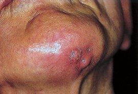 Osteomyelitis - Bone infection breaking through to skin