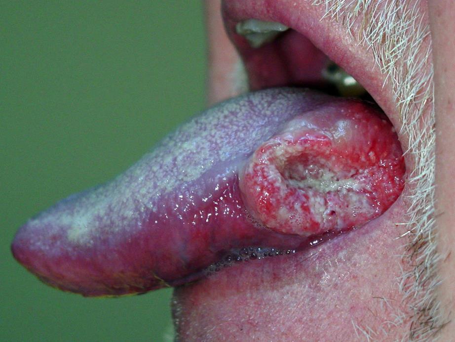 Squamouscellcarcinoma1
