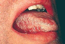 Leukoplakia on margin of tongue