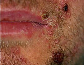 Blisters present on side of face affected by Herpes Zoster