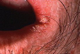 Oral Thrush Infection at angle of mouth