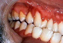 Gingivitis HIV - swollen gums