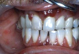 kaposi's sarcoma - dark colour on gingiva