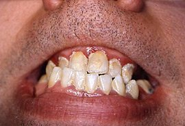 Moderate Periodontitis, red gums, swollen gums