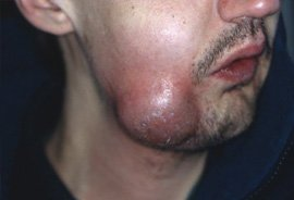 Dental Abscess - Pus collection and reddening of face and neck