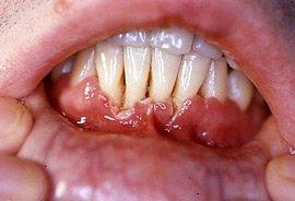 ANUG - Acute Ulcerative Gingivitis - Crater like ulceration of gums
