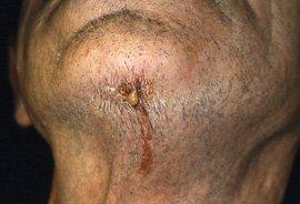 Facialsinus, Osteomyelitis