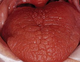 Appearance of tongue in a dry mouth